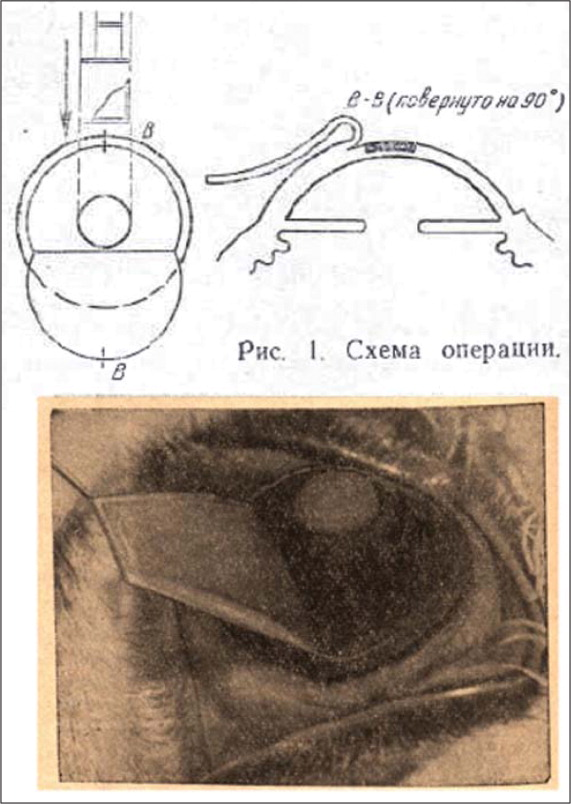 Diagram (top) and intraoperative photograph (bottom) of Pureskin's technique of creating a hinged flap followed by trephination of a stromal disc. (Reprinted with permission from Pureskin NP. Weakening ocular refraction by means of partial stromectomy of cornea under experimental conditions [Russian]. Vestn Oftalmol. 1967;80(1):19–24. Copyright © 1967. Izdatelstvo Meditsina.)