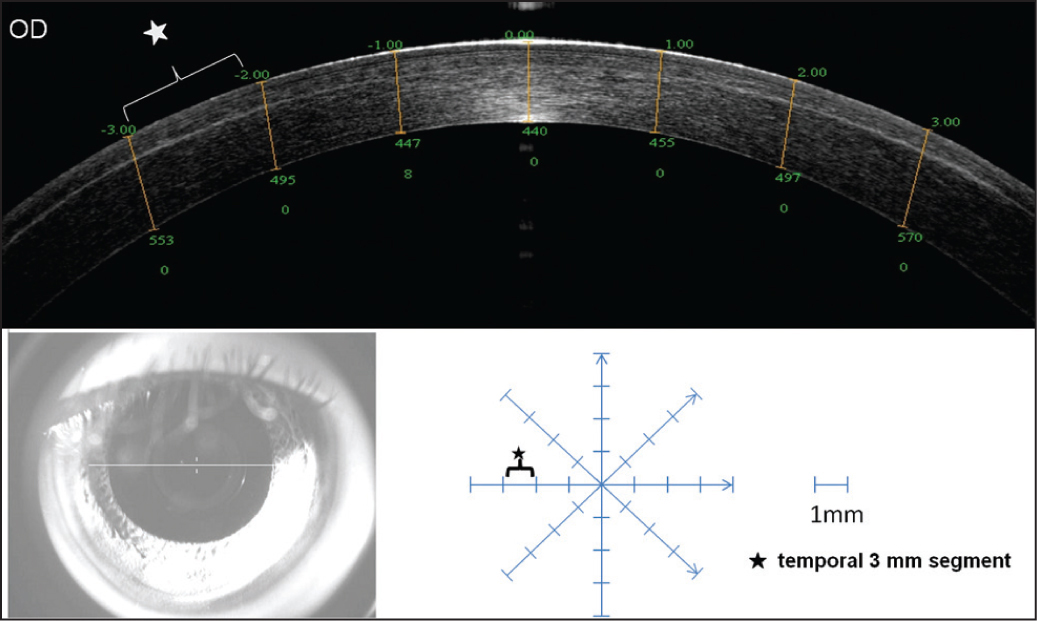 The illustration of counting of micro-distortions in Bowman's layer in optical coherence tomography image. The upper panel shows the eight segments on horizontal meridian. The lower left panel shows the real-time image of eyes from optical coherence tomography monitor. The lower right panel shows the total distribution of the counting segments on four meridians. The star shows the area of temporal 3 mm segment used in counting micro-distortions.