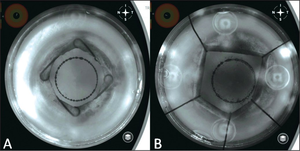 """Screenshot taken from the laser system's infrared camera: performing capsulotomy with and without ophthalmic viscosurgical device (OVD). (A) Only few and small bubbles are visible in an OVD-filled anterior chamber. (B) There is a multitude of gas bubbles in the absence of OVD, just as in a """"normal"""" operation, with a perfectly dilated pupil."""