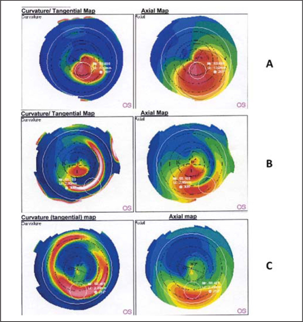 Representative corneal topography changes after intracorneal ring segments implantation (B) and topography-guided photorefractive keratectomy/crosslinking (C). In this patient with keratoconus, the three procedures achieved a progressive flattening of the cone with consequent reduction of topographic astigmatism compared to baseline (A).