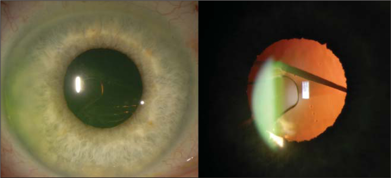 Slit-lamp image showing decentered one-piece toric intraocular lens. The haptic is within the pupillary borders, and the toric marks are visible.