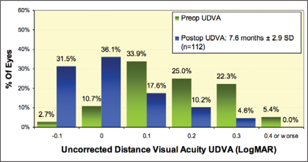 Preoperative and postoperative uncorrected distance visual acuity (UDVA). Note that 85.2% of eyes achieved postoperative UDVA of 6/7.5 (0.1 logMAR) or better.