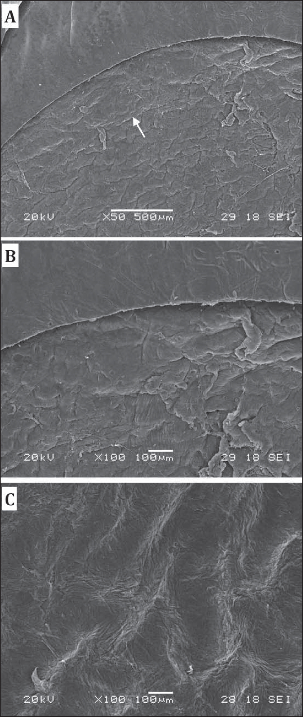 Scanning electron microscopy (SEM) images of the corneal stromal bed treated with pattern C. (A) The transition between lamellar ring and cap cut is barely visible. Arrow shows a slight depression of the cap cut from the lamellar ring. (B) The side cut and surface of lamellar ring. (C) The central corneal flap bed.