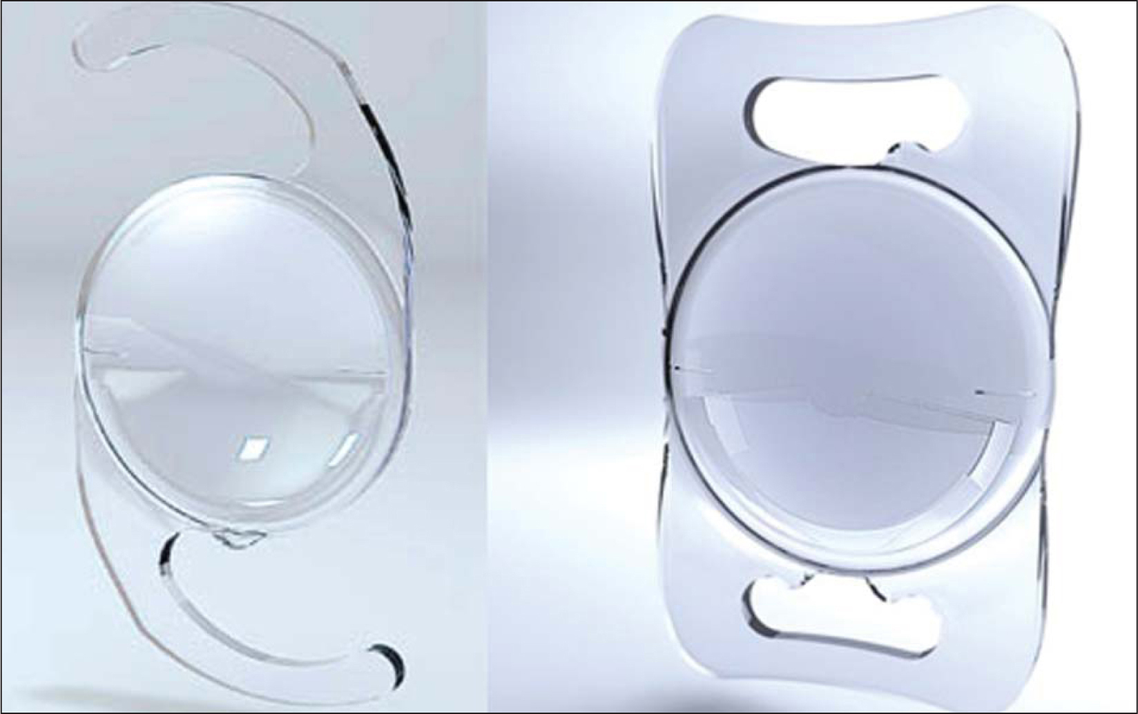 A general view of the Lentis Mplus LS-312 multifocal intraocular lens (left) and the Lentis Mplus LS-313 multifocal intraocular lens (right) (Oculentis GmbH, Berlin, Germany).