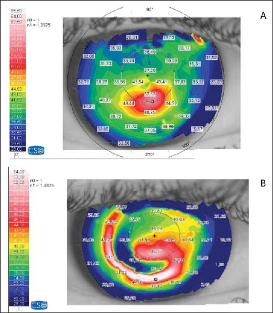 (A) Preoperative and (B) postoperative tangential topographic map of a case analyzed in the current study.