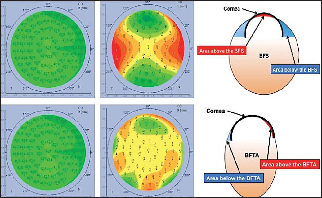 Comparison of the best-fit sphere (BFS) and the best fit toric and aspheric surface (BFTA) when displaying elevation data for a normal asphero-toric cornea. Representation of a cross-section at the steepest axis of the cornea. Top (from left to right): Axial curvature map of a normal astigmatic cornea; the anterior elevation map calculated with the BFS shows a typical ridge pattern due to the corneal astigmatism; Representation of the BFS model in a cross-section passing through the steepest axis. Bottom (left to right): Same axial curvature map; the anterior elevation measured with the BFTA has minimized the effect of the astigmatism, so that there is no ridge pattern visible. Representation of the BFTA model in a cross section passing through the steepest axis.