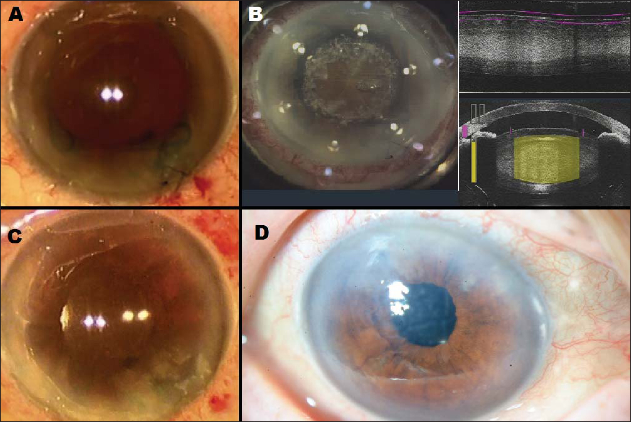 Intraoperative and postoperative state. (A) Clear corneal incisions, stained lens capsule, implanted Malyugin ring, and sutured corneal tunnel can be observed. (B) Femtosecond laser pretreatment: capsulorrhexis and lens fragmentation. (C) At the end of the surgery. (D) Digital photography of the anterior segment 1 week after cataract surgery.