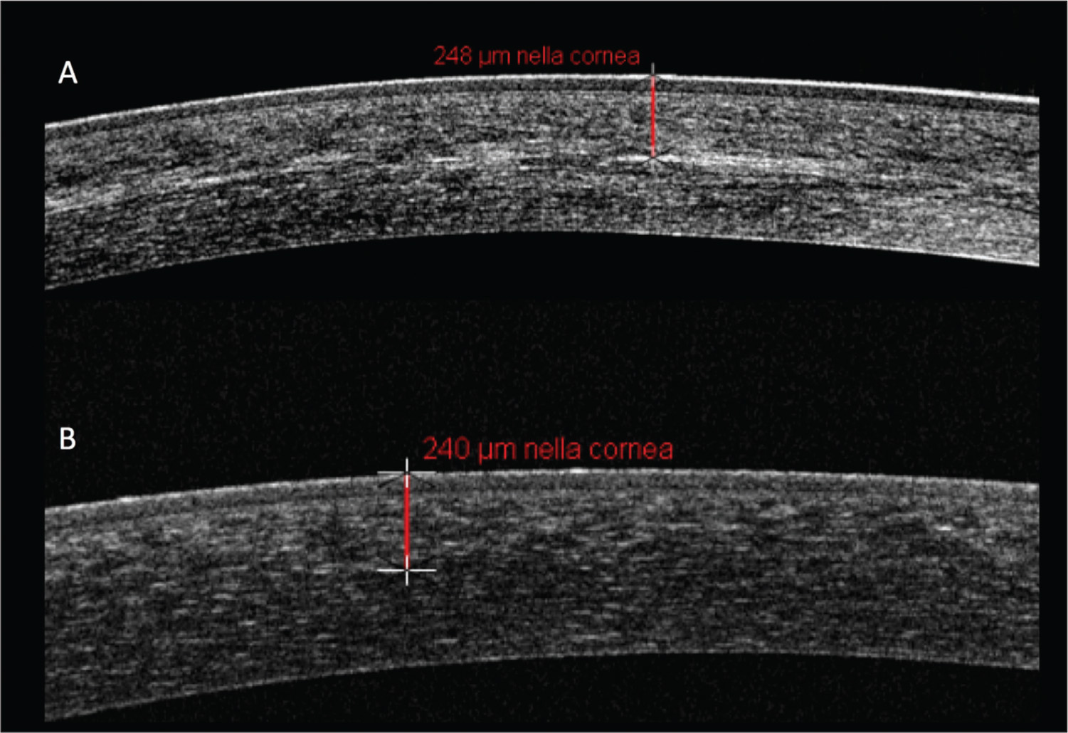 Difference in anterior segment optical coherence tomography in a patient who underwent (A) standard epithelium-off cross-linking (S-CXL) in one eye and (B) transepithelial iontophoresis cross-linking (I-CXL) in the other. In S-CXL, an increase of reflectance with a white line (demarcation line) is normally visible. In I-CXL, it is possible to detect a similar increase of reflectance; however, no white line is visible.