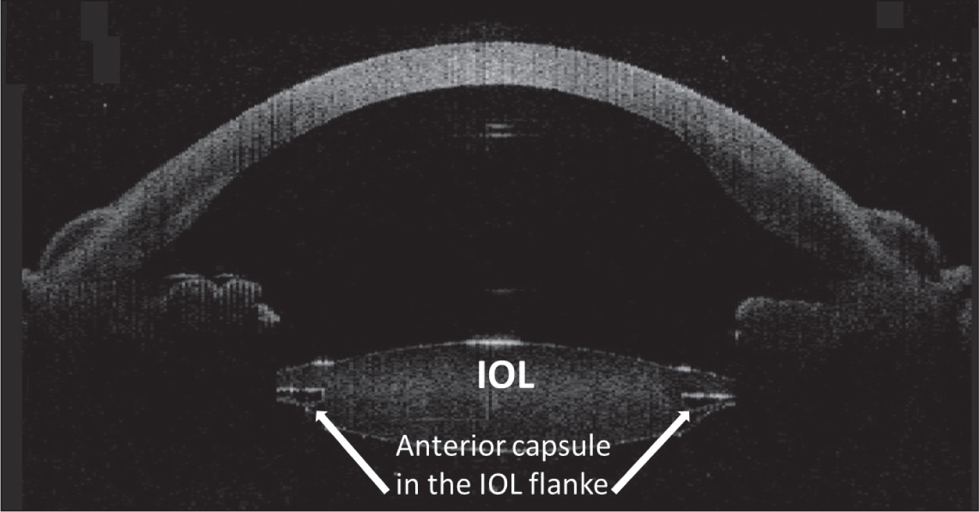 Anterior segment, three-dimensional spectral-domain optical coherence tomography immediately after surgery.