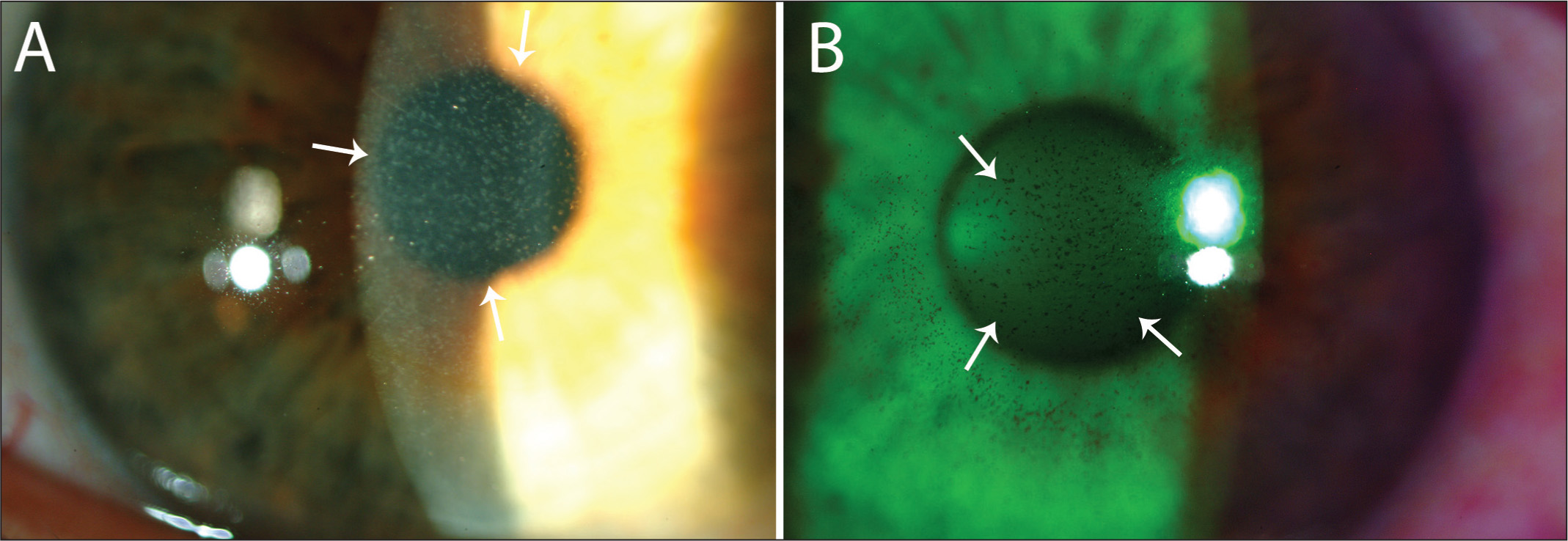 Slit-lamp photographs of corneas with punctate epithelial erosions present at the refractive surgery screening examination (original magnification ×40). (A) A cornea with 2+ punctate epithelial erosions (arrows) seen in the slit beam on the anterior cornea surface. (B) Cornea with 2+ lissamine green staining (arrows) before surgery.