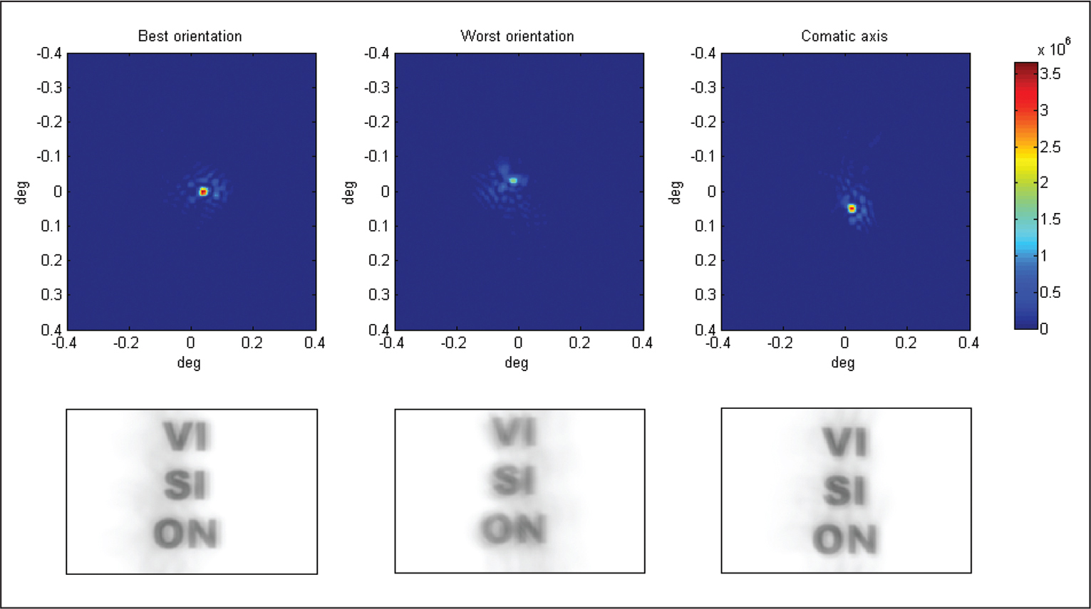 The upper part shows point spread function (PSF), for a 5.0-mm pupil, of the intraocular lens placed with the best orientation (left), the worst orientation (middle), and toward the supplementary angle of the comatic axis (right). The lower part shows PSF convolution with different letters corresponding to a visual acuity of 20/20.