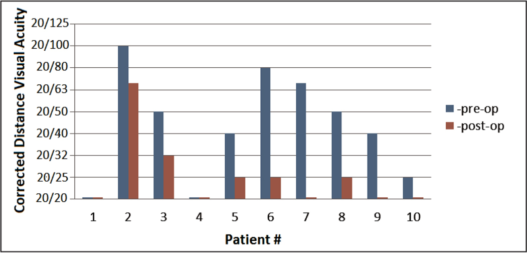 Corrected distance visual acuity for study patients preoperatively (pre-op) and 1 week postoperatively (post-op). All eyes worse than 20/20 (logMAR = 0.0) improved after surgery.