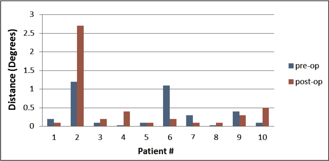 Fixation drift of all patients. Patient 2 had abnormally high fixation drift before (pre-op) and after (post-op) surgery, whereas patient 6 improved after surgery. Subject 2 is a statistical outlier after surgery.