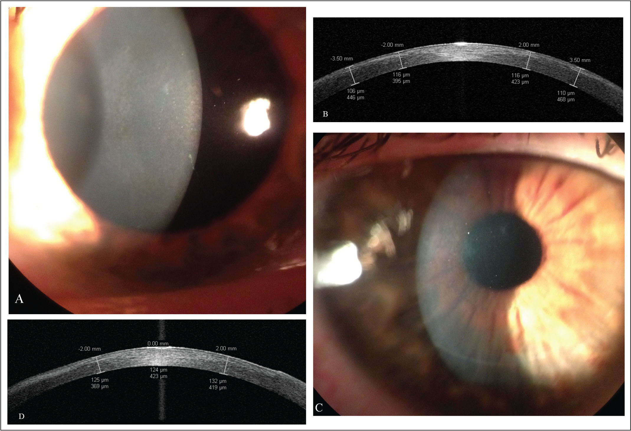 (A) Slit-lamp image of the right eye preoperatively, showing corneal stromal haze formation in a denser temporal semi-arcus. (B) High-resolution anterior segment optical coherence tomography (AS-OCT) scan of the corneal subepithelial stromal haze, demonstrating a maximum depth of 116 µm. (C) Slit-lamp image of the right eye 1 month postoperatively, showing a uniform flap and residual corneal stromal haze. (D) High-resolution AS-OCT scan of the cornea, demonstrating an uneventful corneal flap with a central depth of 124 µm and residual corneal stromal haze.
