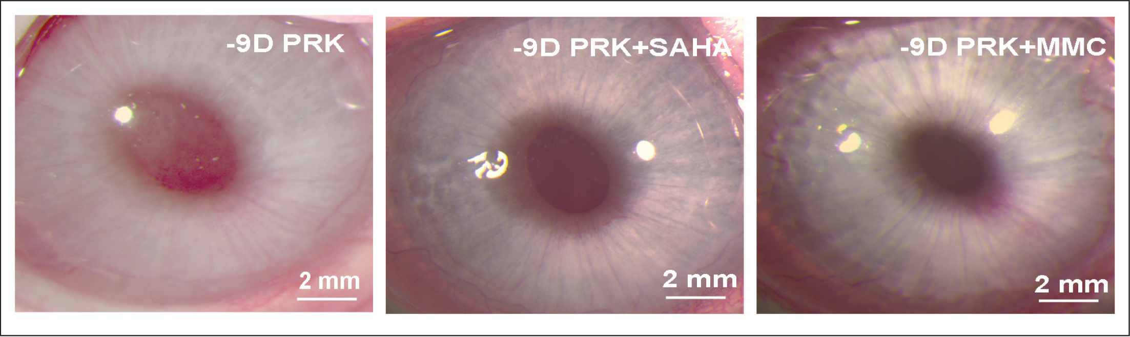 Effect of suberoylanilide hydroxamic acid (SAHA) or mitomycin C (MMC) application on corneal haze in vivo. Representative stereo-microscopy images showing corneal haze levels and its quantification noted at 4 months in −9.00 diopter photorefractive keratectomy (PRK) performed on rabbit corneas that received either balanced salt solution (control), SAHA (25 μM), or MMC (0.02%). Each group had 6 eyes for slit-lamp biomicroscopy. The central scar was considerably reduced and the overall corneal clarity appeared improved in corneas treated with SAHA or MMC.