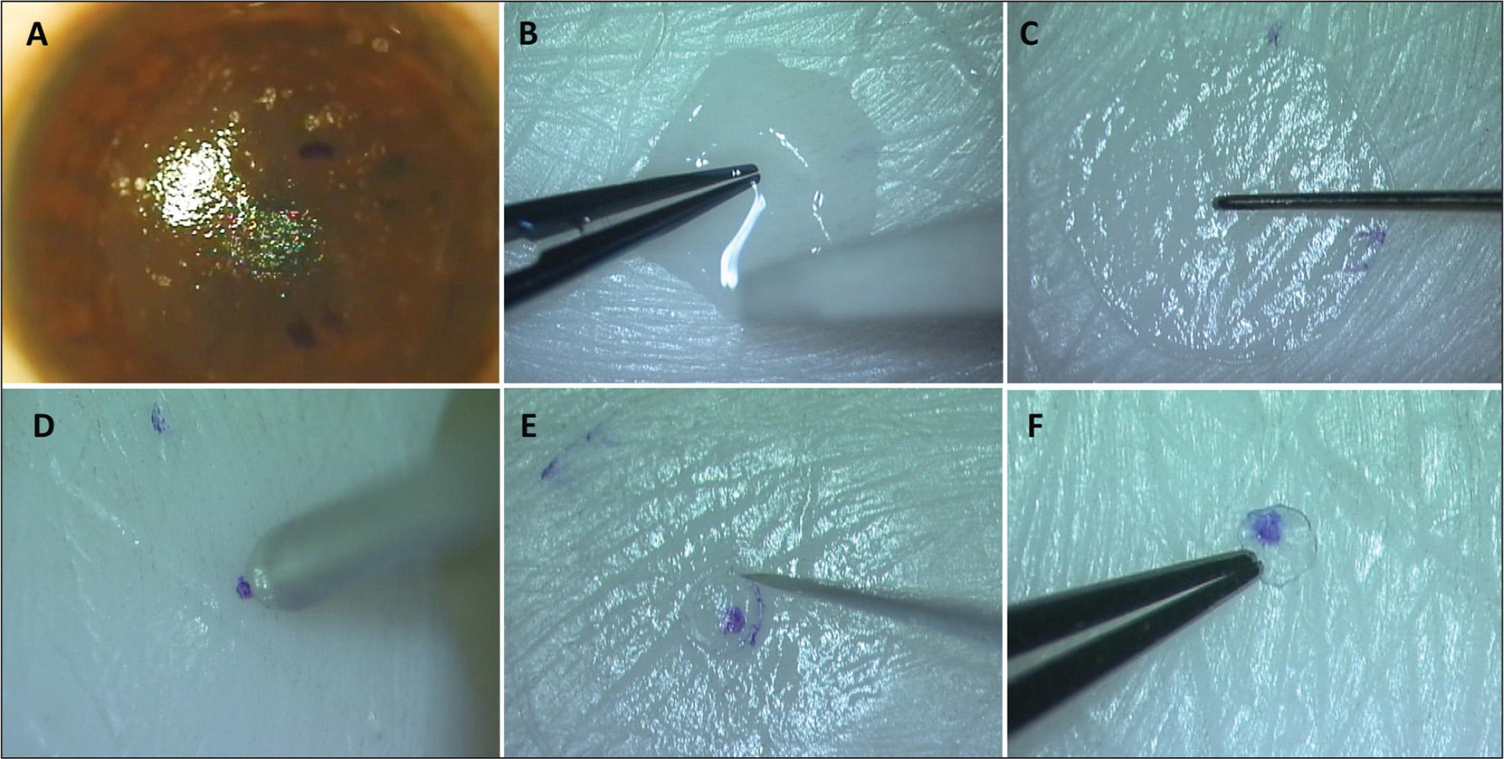 PrEsbyopic Allogenic Refractive Lenticule (PEARL) inlay preparation. (A) The small incision lenticule extraction (SMILE) lenticule is harvested and marked with three horizontal lines, a single one above separated from two closely placed parallel marks below. (B) The stored SMILE lenticule is spread out with anterior side facing up and dried with a surgical sponge. (C) The center is marked with the inked tip of a fine Sinskey hook. Orientation marks are clearly visible. (D) A 1-mm trephine is used to cut the lenticule. (E) Any uncut tags may be cut with a 15° blade. (F) The prepared PEARL inlay is ready for implantation.