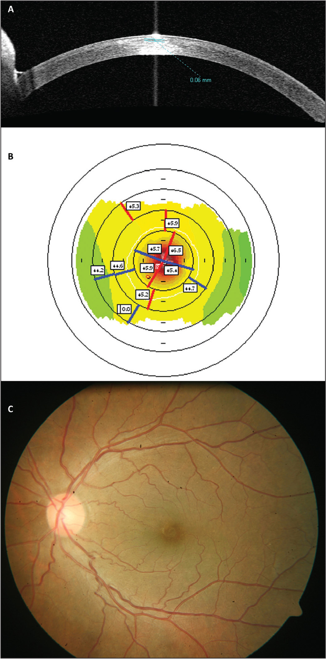 (A) Anterior segment optical coherence tomography showing a well-centered inlay. (B) Corneal topography showing a hyperprolate cornea in the central zone. (C) Fundus imaging through the PrEsbyopic Allogenic Refractive Lenticule (PEARL) inlay.