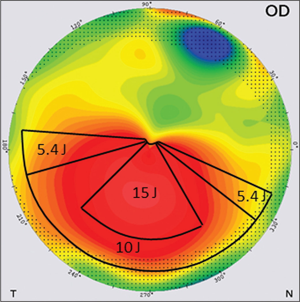 Example of customized treatment on topography map. The maximum ultraviolet-A energy is focused on top of the cone (15 J) and decrease gradually (from 10 to 5.4 J) to the periphery.