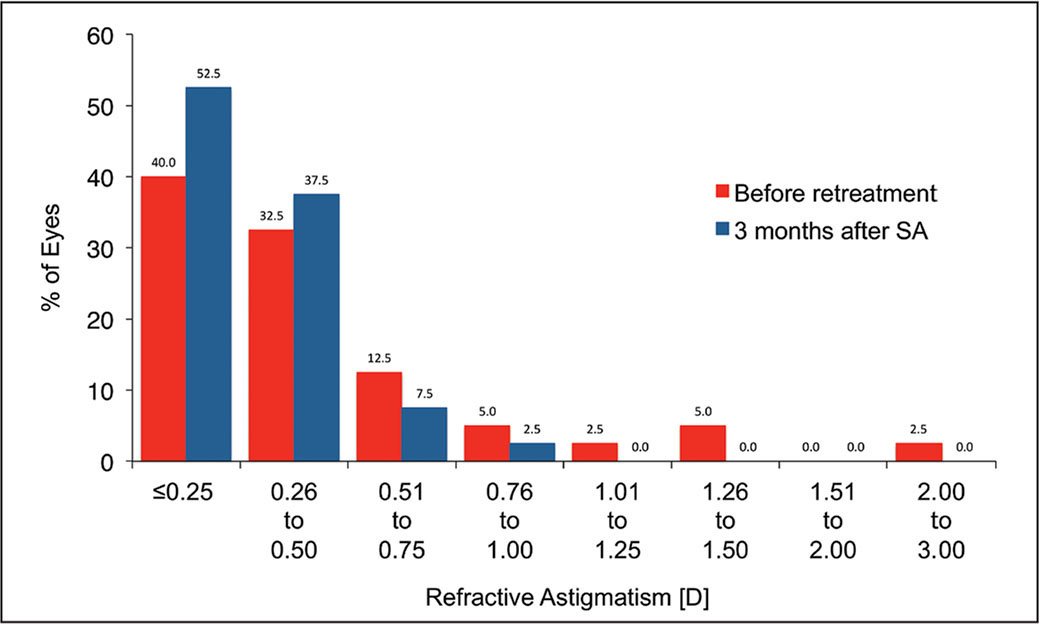 Distribution of refractive astigmatism. The number of patients within ±0.50 diopters (D) of astigmatism increased from 72.5% to 90%. After re-treatment, no eyes had an astigmatism of 1.00 D or worse (before enhancement: 10%). SA = surface ablation