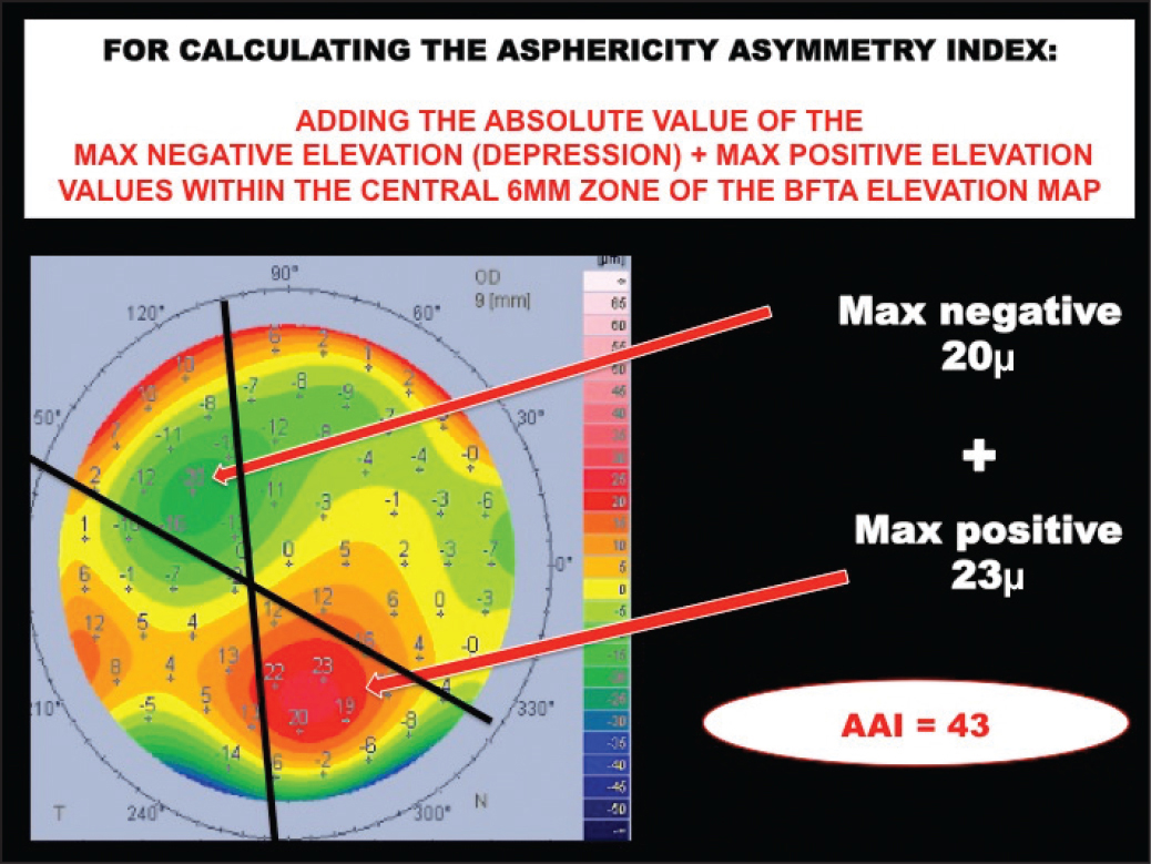 How to calculate the posterior asphericity asymmetry index (AAI). BFTA = best-fit toric and aspheric body