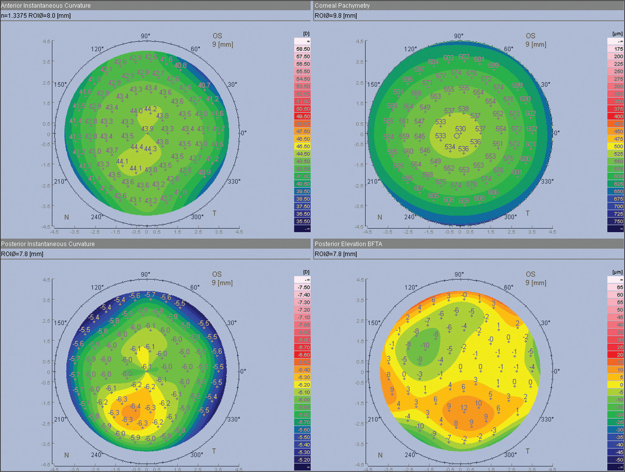 An example of a 4-screen display showing normal features of the anterior curvature map.