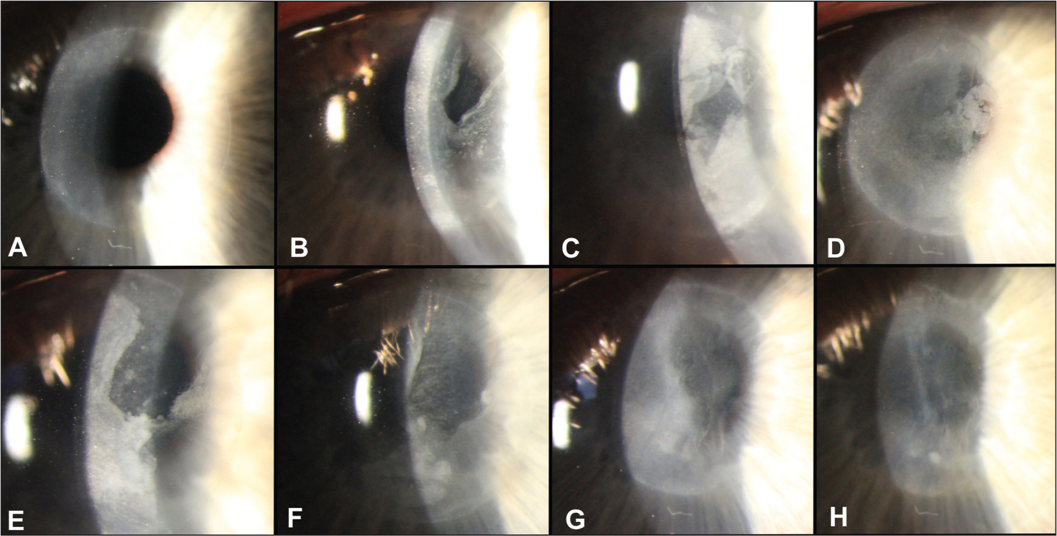 (A) Corneal inlay 8 years after implantation. (B) Corneal inlay with partial flap melt 9 years after implantation and immediately before explantation. (C) Cornea 1 day after explantation. (D) Cornea 4 days after explantation. (E) Cornea 2 weeks after explantation. (F) Cornea 4 weeks after explantation. (G) Cornea 2 months after explantation. (H) Cornea 1 year after explantation.