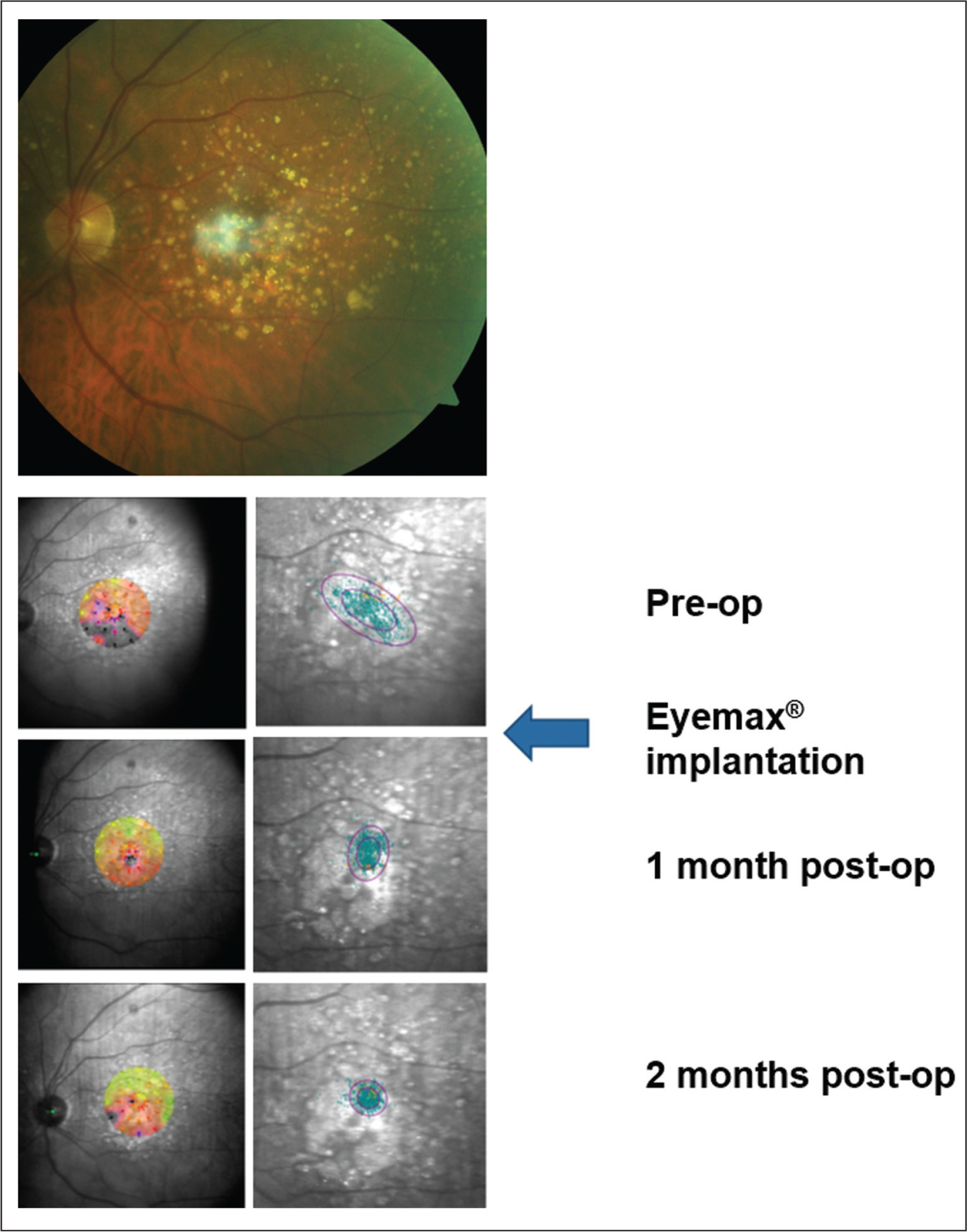 Preoperative color fundus photograph and microperimetric images obtained at baseline and 2 and 4 months after implantation of the Eyemax mono intraocular lens (IOL) (LEH Pharma, London, United Kingdom) (eye 7). Color fundus photograph of the left eye in an 84-year-old man (top panel) confirming patchy geographic atrophy and associated drusen. Left panels show baseline and post-implantation interpolated sensitivity maps demonstrating the sensitivity at each point of the retina using information from nearby stimuli. Right panels show fixation points (blue dots; orange fixation dots represent points used in the first 10 seconds of the test) with bivariate contour ellipse area analysis; the smaller ellipse contains 63% of all fixation points and the larger ellipse contains 95% of all fixation points. Threshold sensitivity at baseline is observed to be reduced (9.5 dB) and fixation points are spread over a wide area. Threshold sensitivities were observed to have increased at 1 and 2 months postoperatively (average threshold sensitivities 15.4 and 17.1 dB, respectively); these changes are associated with a progressively more tightly focused cluster of fixation points centered outside of the area of geographic atrophy (mean percentage of fixation points within a 4° circle increased from 66% at baseline to 97% at 1 month and 98% at 2 months postoperatively).