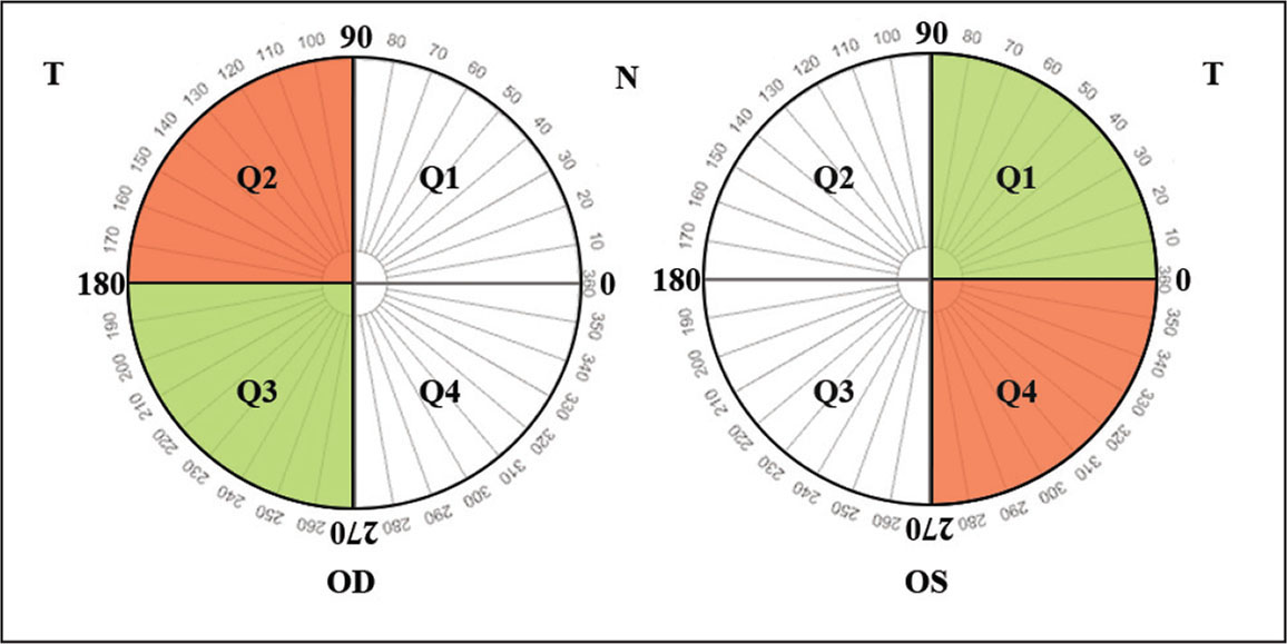 Angular map of kappa locus in right and left eyes. The figure schematically illustrates four quadrants in each eye where the angular location of kappa locus falls. In both eyes, kappa locus is dominantly located in the lateral semicircles of the corneal plane, which corresponds to quadrants 2 and 3 in the right eye and quadrants 1 and 4 in the left eye. Right eyes with their kappa locus located in the second quadrant have higher risk of dynamic cyclotorsional movements during the transepithelial photorefractive keratectomy surgery, compared to those with their locus located in the third quadrant. In left eyes, the location of kappa locus in the first quadrant is associated with lower risk of cyclotorsion, compared to the fourth quadrant. OD = right eye; OS = left eye; Q = quadrant; T = temporal; N = nasal; red shading = high risk of cyclotorsion; green shading = lower risk of cyclotorsion