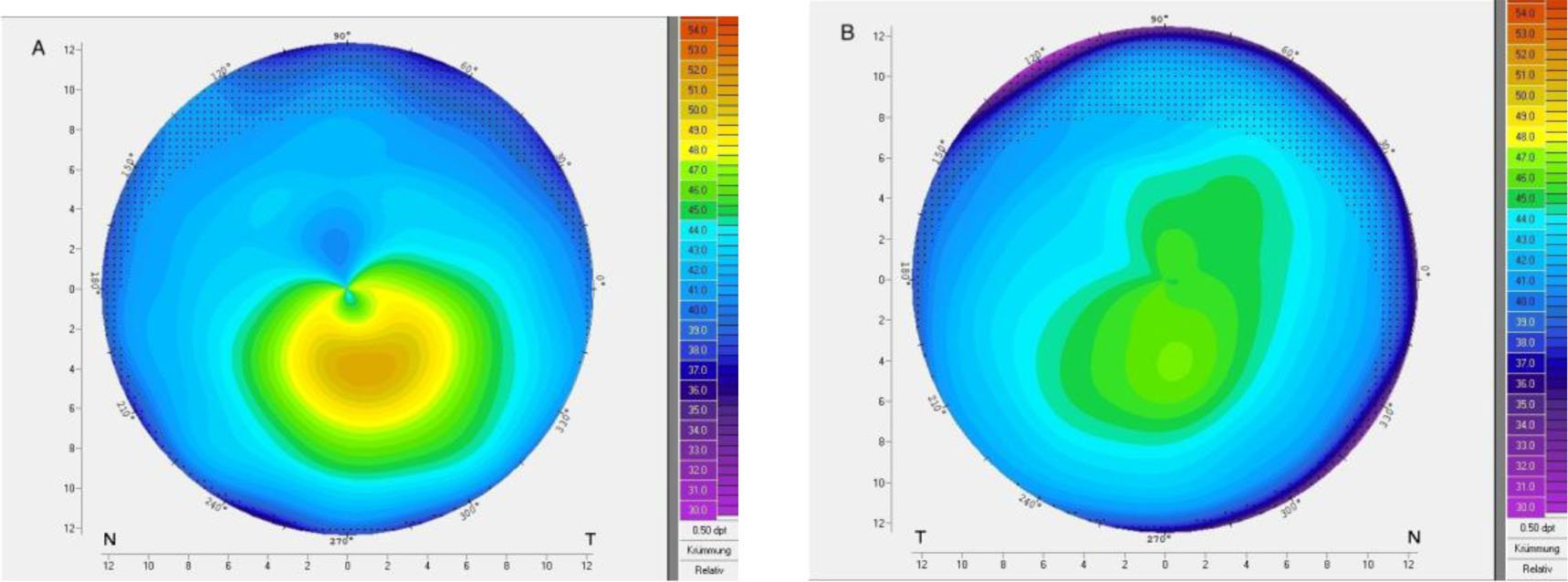 Corneal topography of patient 31 with very asymmetric keratoconus showing (A) ectasia and (B) regular topography in the fellow eye.