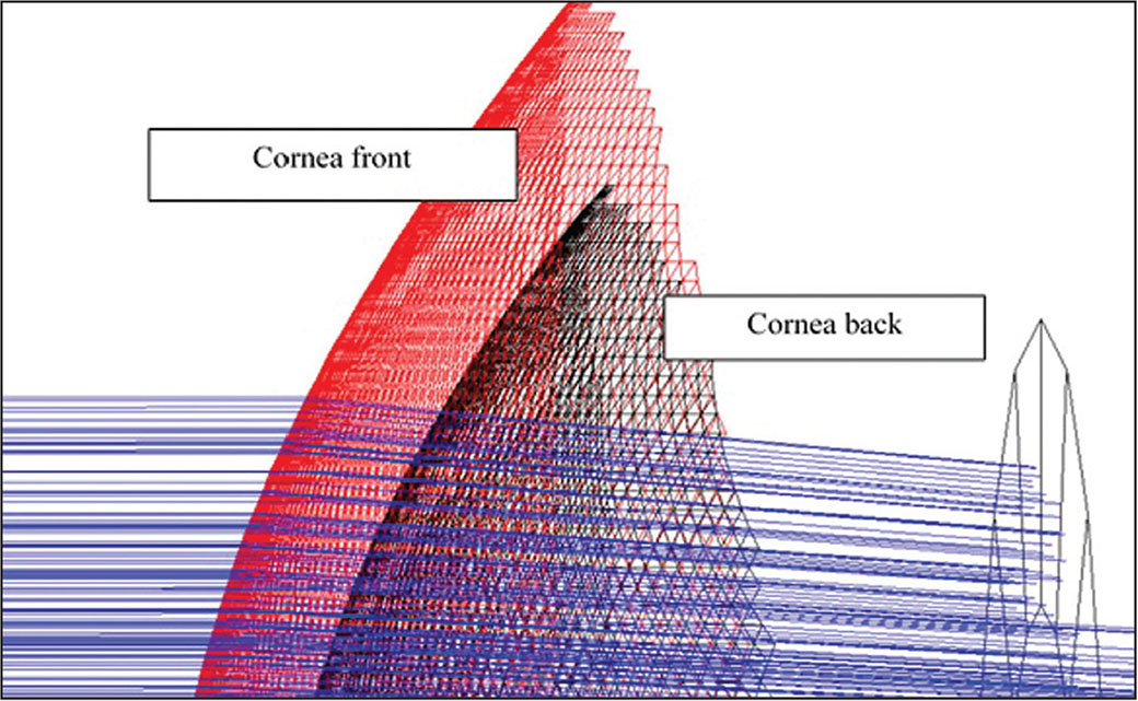 The Pentacam (Oculus Optikgeräte, Wetzlar, Germany) measurements of the front and back surface of the cornea have been imported into the Zemax software (Zemax LLC, Redmond, WA). Each surface has been constructed as a meshwork of miniature triangles connected by the individual data points. An aperture has been inserted to block peripheral rays simulating the effect of the pupil. Rays originate from a distant point source 20 feet in front of the cornea.