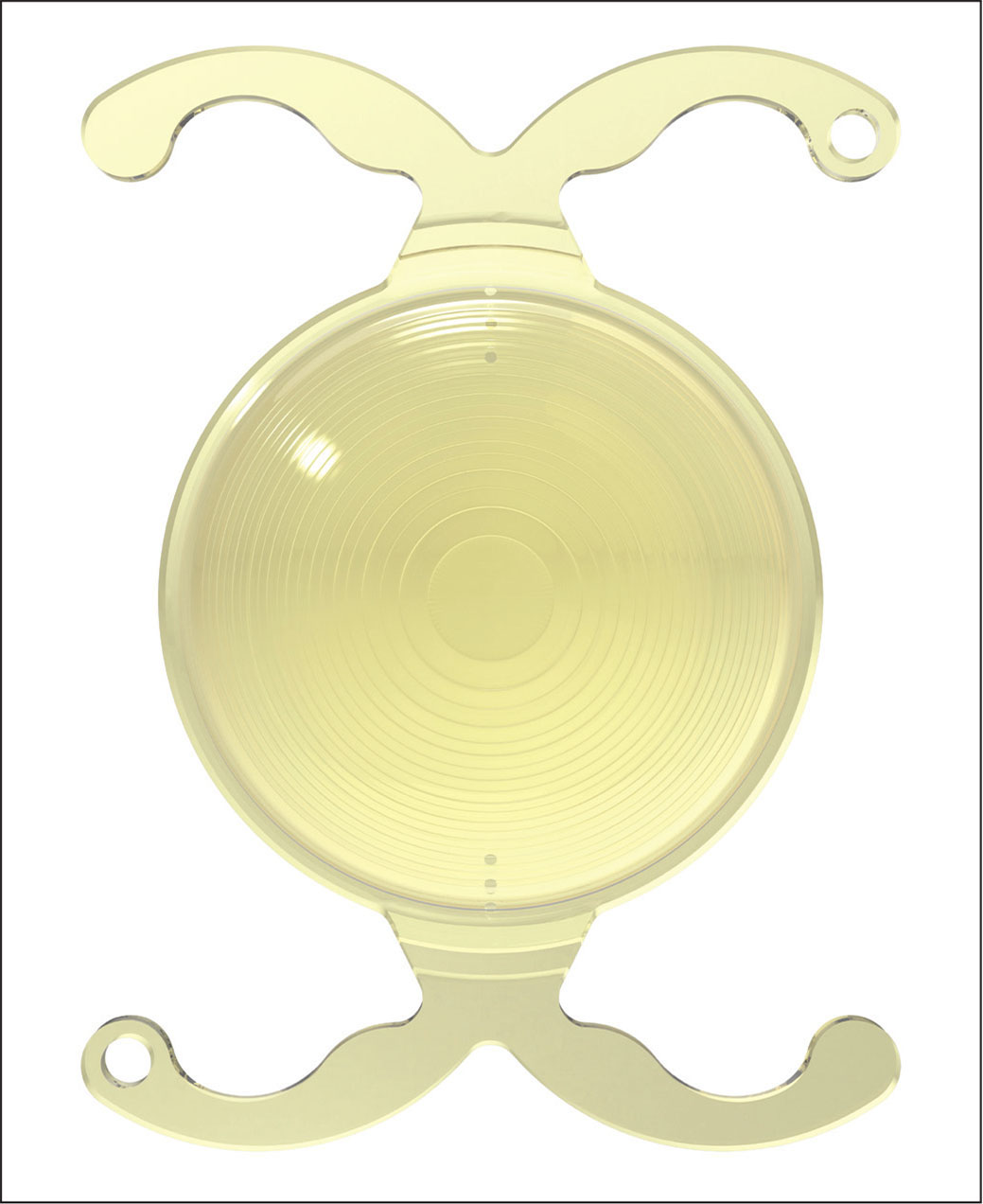 Image of the trifocal toric intraocular lens (FineVision Toric Pod FT; PhysIOL, Liège, Belgium).