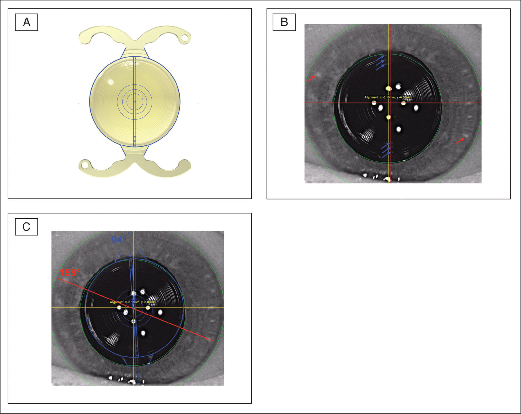 (A) Image of the trifocal toric intraocular lens (IOL) with overlying sketch used to evaluate rotational stability. (B) Postoperative frontal image (Galilei 6 Lens Professional; Ziemer, Port, Switzerland). Blue arrows indicate IOL axis marks, red arrows indicate investigator-defined iris landmarks. (C) Postoperative frontal image (Galilei 6), superimposed with IOL sketch after adjusting position and angle.