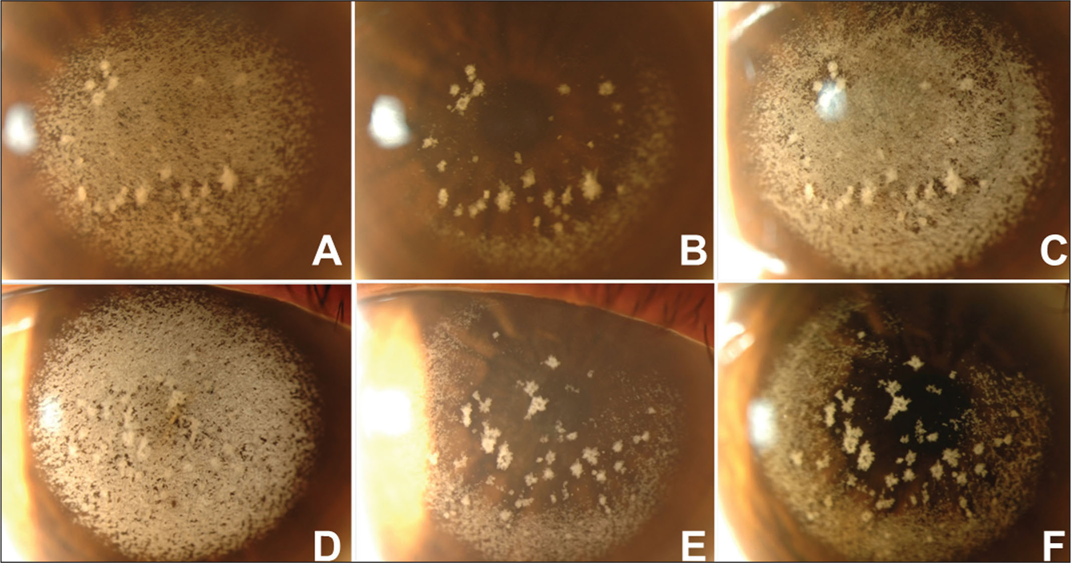 Slit-lamp photographs revealing recurrence after phototherapeutic keratectomy (PTK) in the eye receiving flap conservation. (A) Left eye of a patient with granular corneal dystrophy type 2 exacerbated after LASIK before PTK. (B) Left eye of the same patient 10 days after PTK with flap conservation. (C) Left eye of the same patient with significant recurrence 46 months after PTK. (D) Right eye of the same patient before PTK. (E) Right eye of the same patient 10 days after PTK with flap removal. (F) Right eye of the same patient with no recurrence 36 months after PTK.