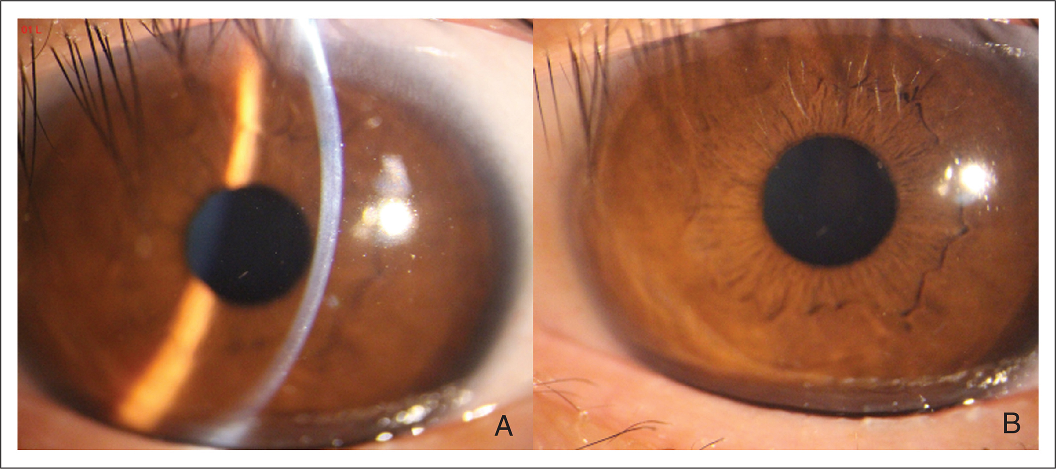 (A) Slit-lamp image and (B) diffuse light photograph of the cornea 2 years after surgery.