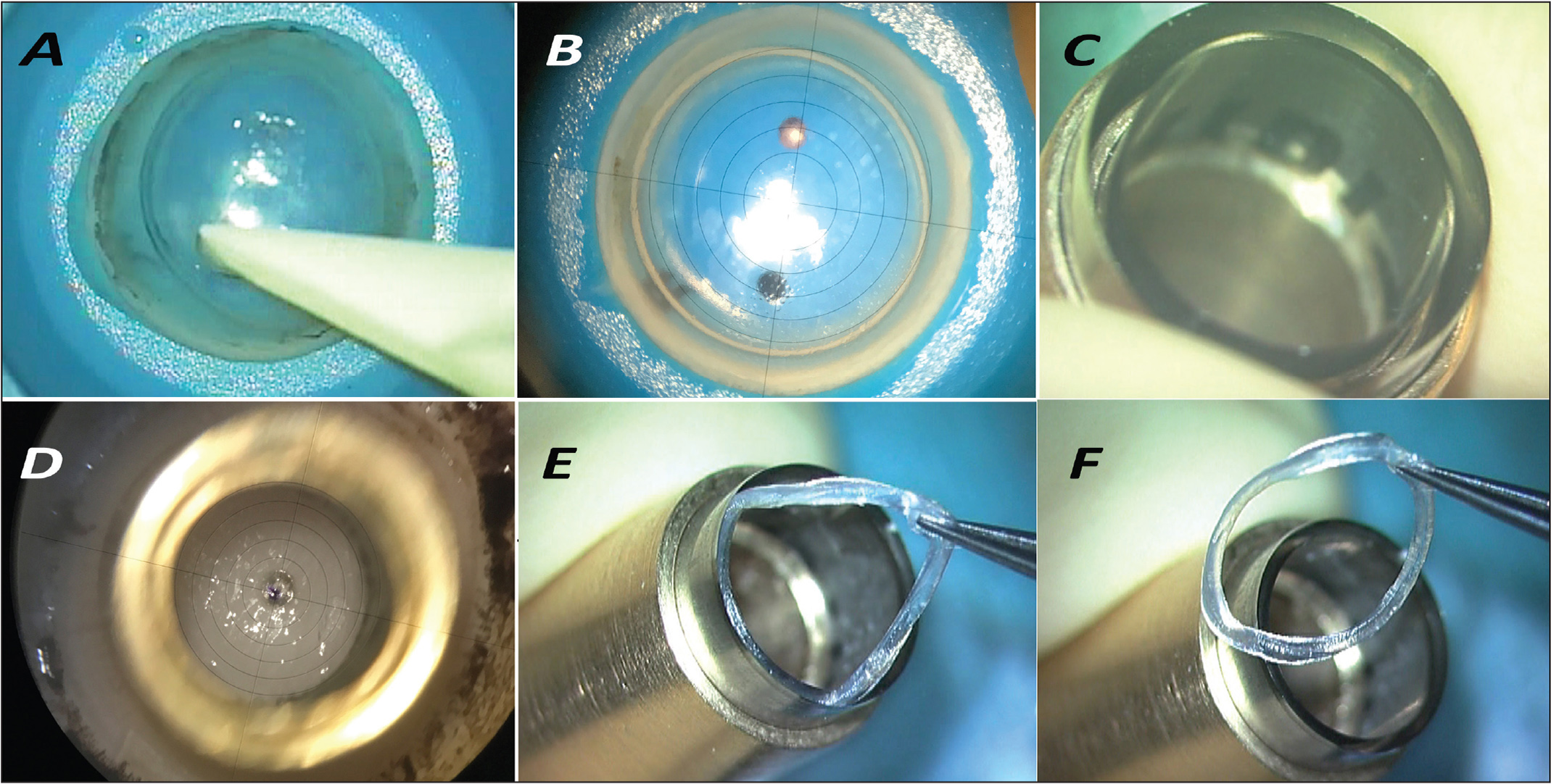 Corneal allogenic intrastromal ring segments (CAIRS) preparation. (A) The donor epithelium is completely removed from limbus to limbus using dry sponges. (B) The corneal center is marked using the reticule of the VisuMax 500-kHz femtosecond laser platform (Carl Zeiss Meditec, Jena, Germany). (C) Specially designed double-bladed circular trephine (Jacob CAIRS trephine; Madhu Instruments, New Delhi, India). (D) After removing endothelium, the trephine is centered on the inked mark using the reticule. (E) Two concentric cuts are made on the donor corneal rim. (F) A circular corneal allogenic intrastromal ring segment is seen, which is then bisected into two.