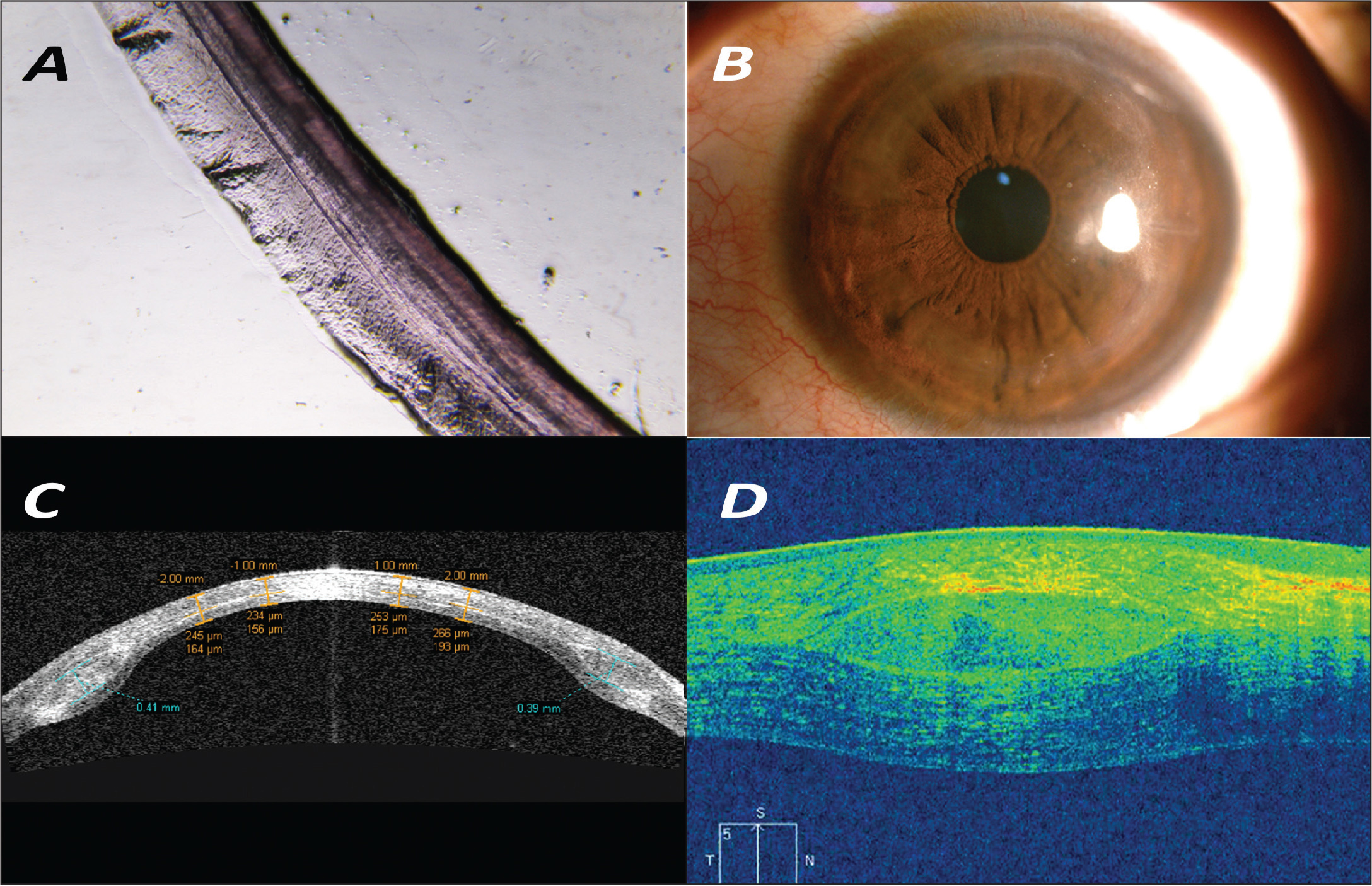 Corneal allogenic intrastromal ring segments (CAIRS) postoperatively. (A) Light microscopic image of the CAIRS showing regular, even cuts and structurally unaltered normal corneal tissue. (B) Slit-lamp photograph showing the CAIRS. (C) Time-domain anterior segment optical coherence tomography (AS-OCT) showing the CAIRS and demarcation line. (D) Spectral-domain AS-OCT showing the CAIRS.