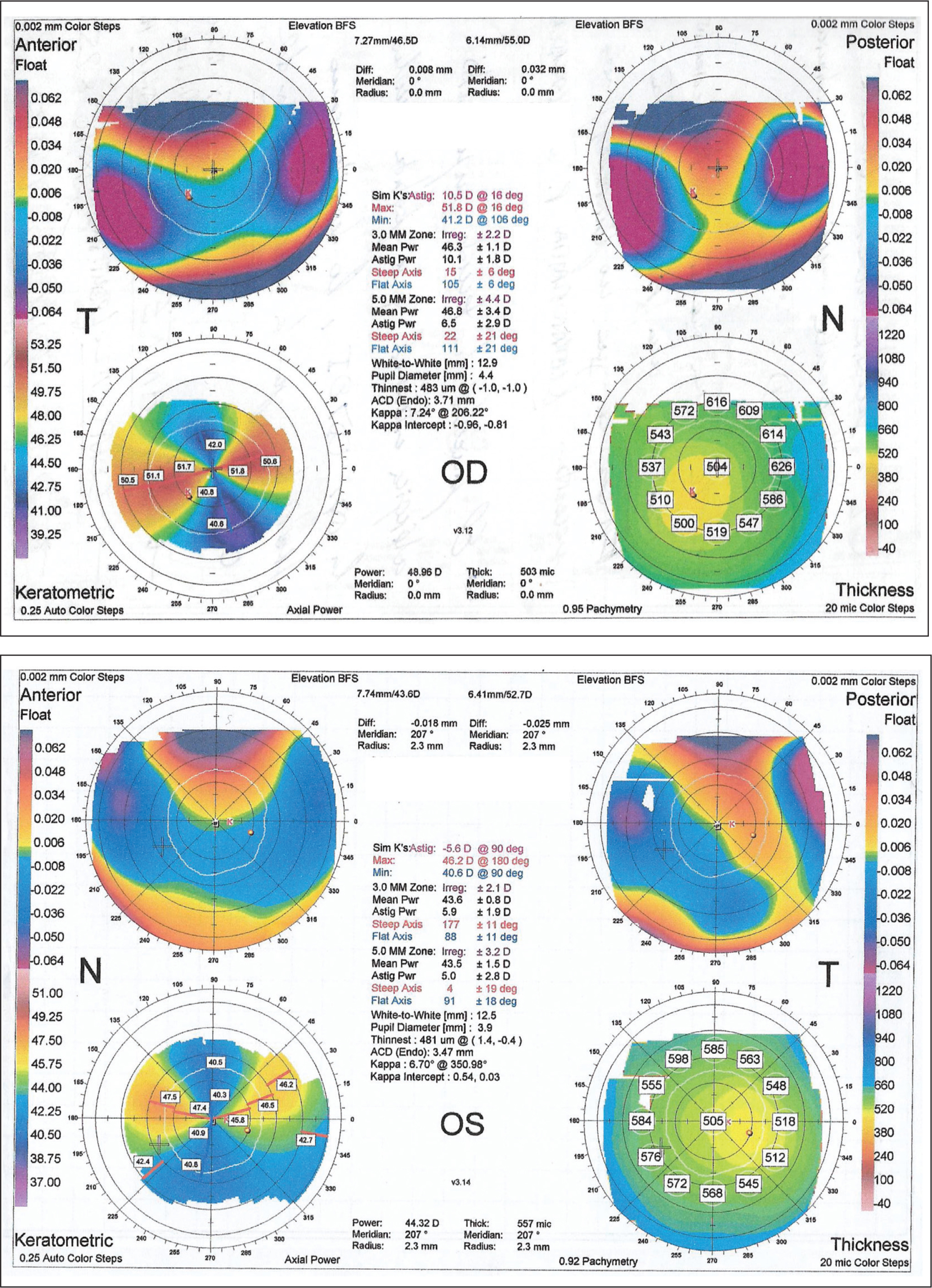 Preoperative corneal topography showing the increased against-the-rule astigmatism and the anterior and posterior elevation of the cornea in the superior quadrants. (Top) Right eye, 2008. (Bottom) Left eye, 2012.
