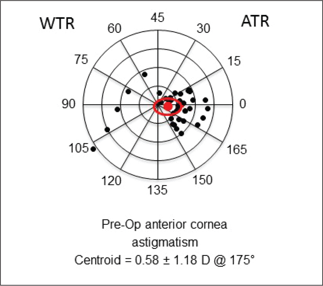 Double-angle plots showing preoperative corneal astigmatism measured by the Lenstar (Haag-Streit AG, Koeniz, Switzerland). Each ring represents 0.25 diopters (D), and the outer ring represents 1.00 D. red dot = centroid, red line = standard deviation; ATR = against-the-rule astigmatism; WTR = with-the-rule astigmatism