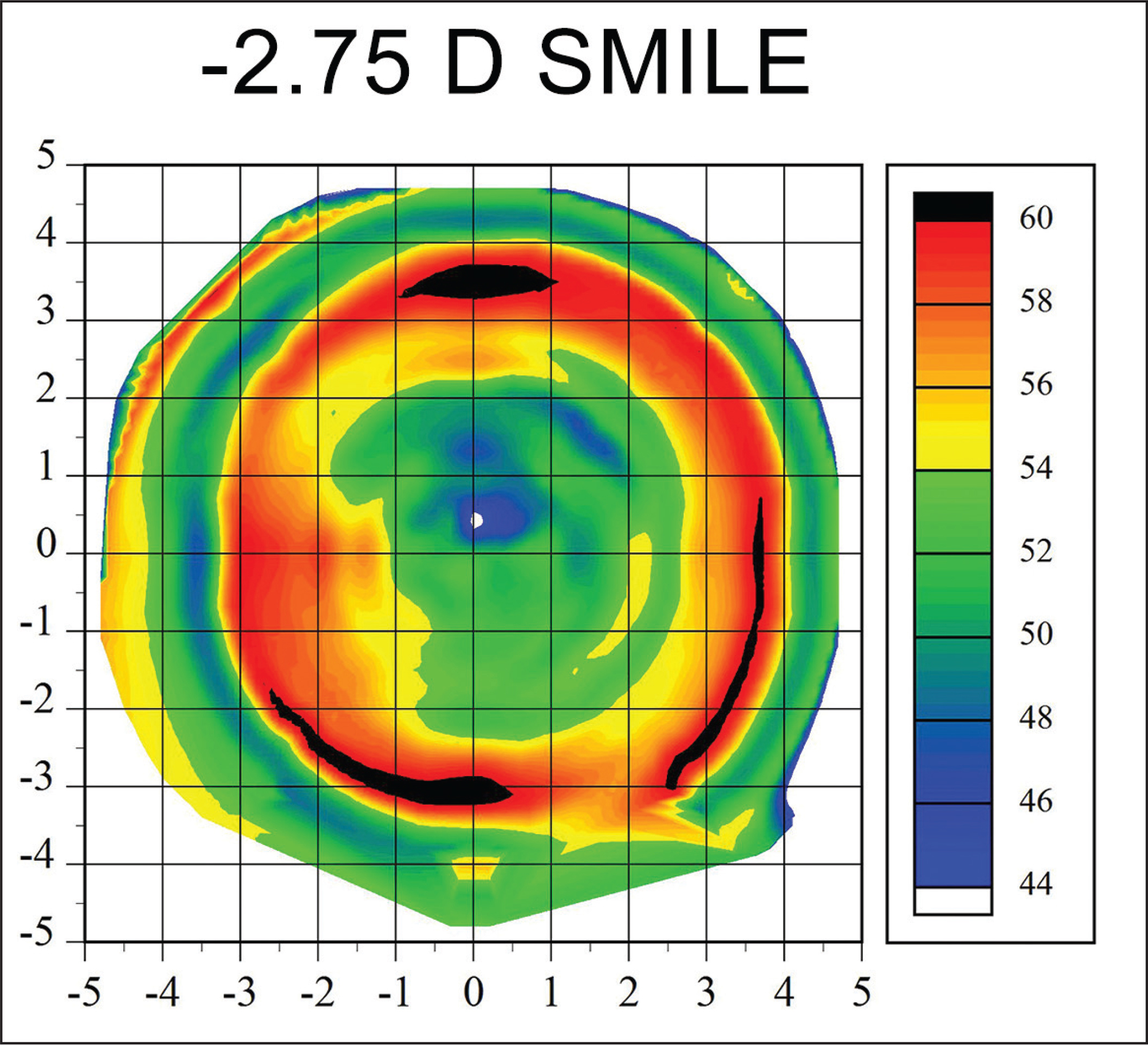 Examples of an Artemis Insight 100 very high frequency digital ultrasound (ArcScan, Inc., Golden, CO) epithelial thickness profile after small incision lenticule extraction (SMILE) for low myopia (−2.75 diopters [D]). The epithelial thickness profile is thinner centrally and thicker paracentrally, which is the opposite to that observed after myopic LASIK. The relative dominance of the minimum lenticule thickness in low myopic SMILE (20 μm in this example) means that the epithelial thickness profile appears more similar to a hyperopic than myopic treatment. Reprinted with permission from Reinstein DZ, Archer TJ, Carp GI. The Surgeon's Guide to SMILE: Small Incision Lenticule Extraction. Thorofare, NJ: SLACK Incorporated; 2018.