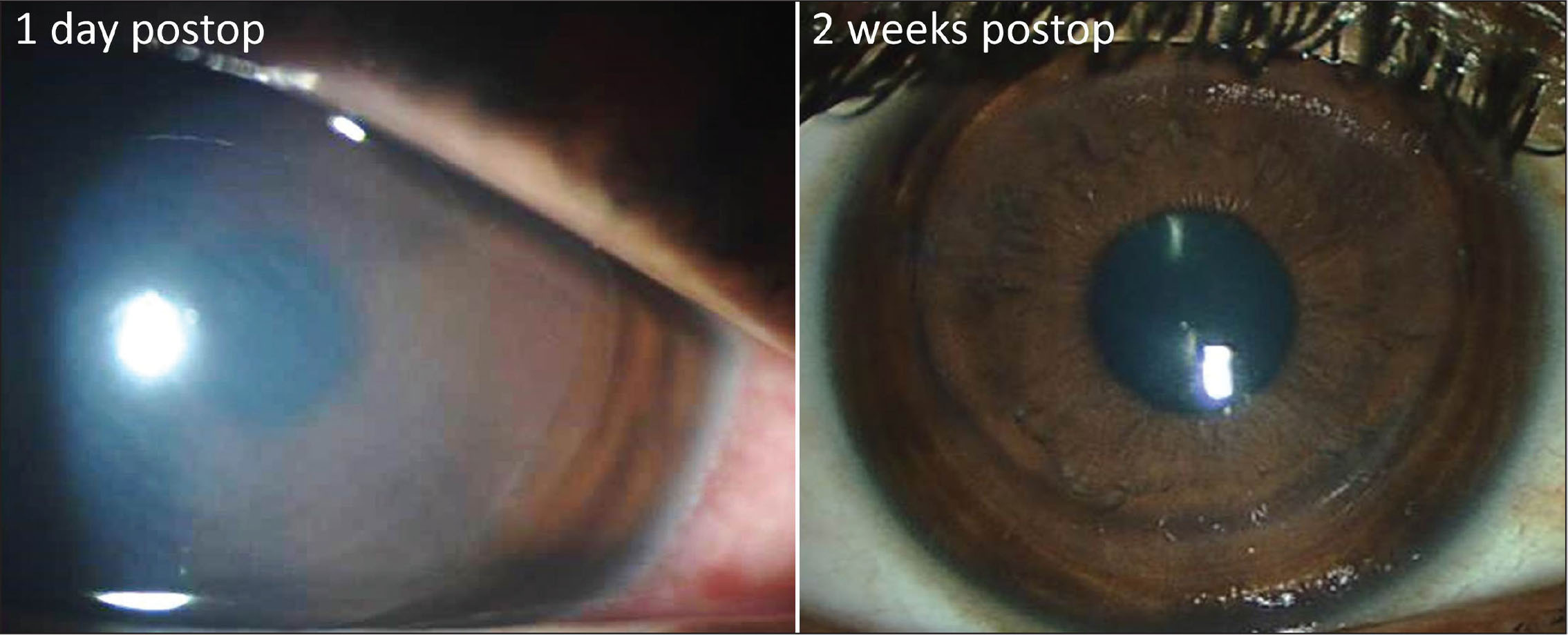 (Left) Slit-lamp photograph 1 day after treatment showing moderate stromal edema and (right) 2 weeks after treatment showing a clear and centered graft with mild residual stromal edema.