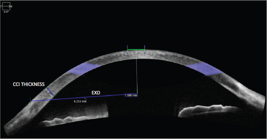 Anterior segment optical coherence tomography (AS-OCT) image demonstrating clear corneal incision (CCI) and distance of CCI to central corneal axis measurements. EXD = external wound opening
