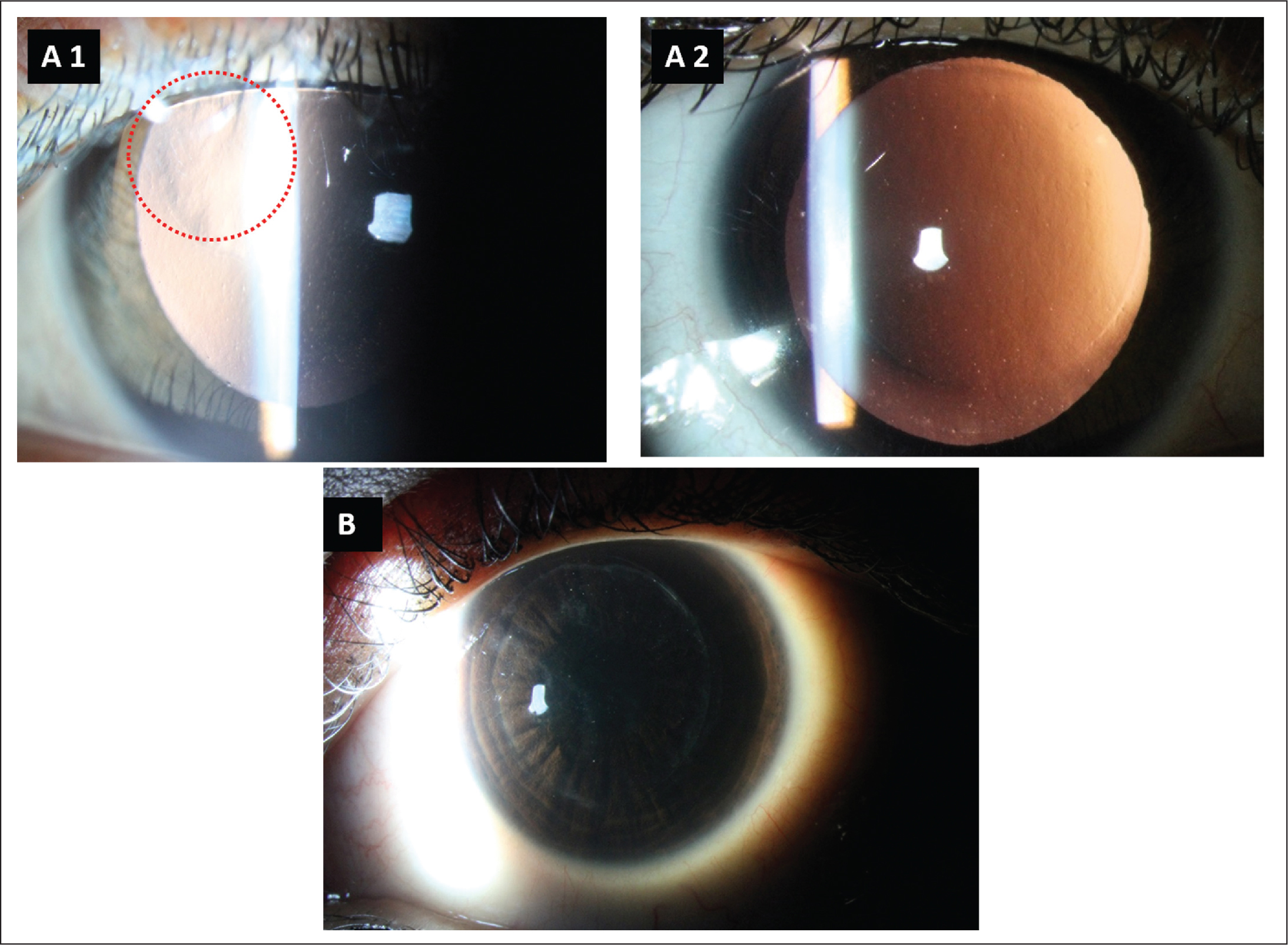 Clinical photographs of case 1 (A1) before repair surgery. The red circle highlights the area corresponding to the black patch, leading to irregularity in the corneal tissue. (A2) Post-repair surgery clinical photograph shows regularization of the corneal contour. (B) Case 2 after repair surgery shows mild diffuse interface scarring, sparing the visual axis.