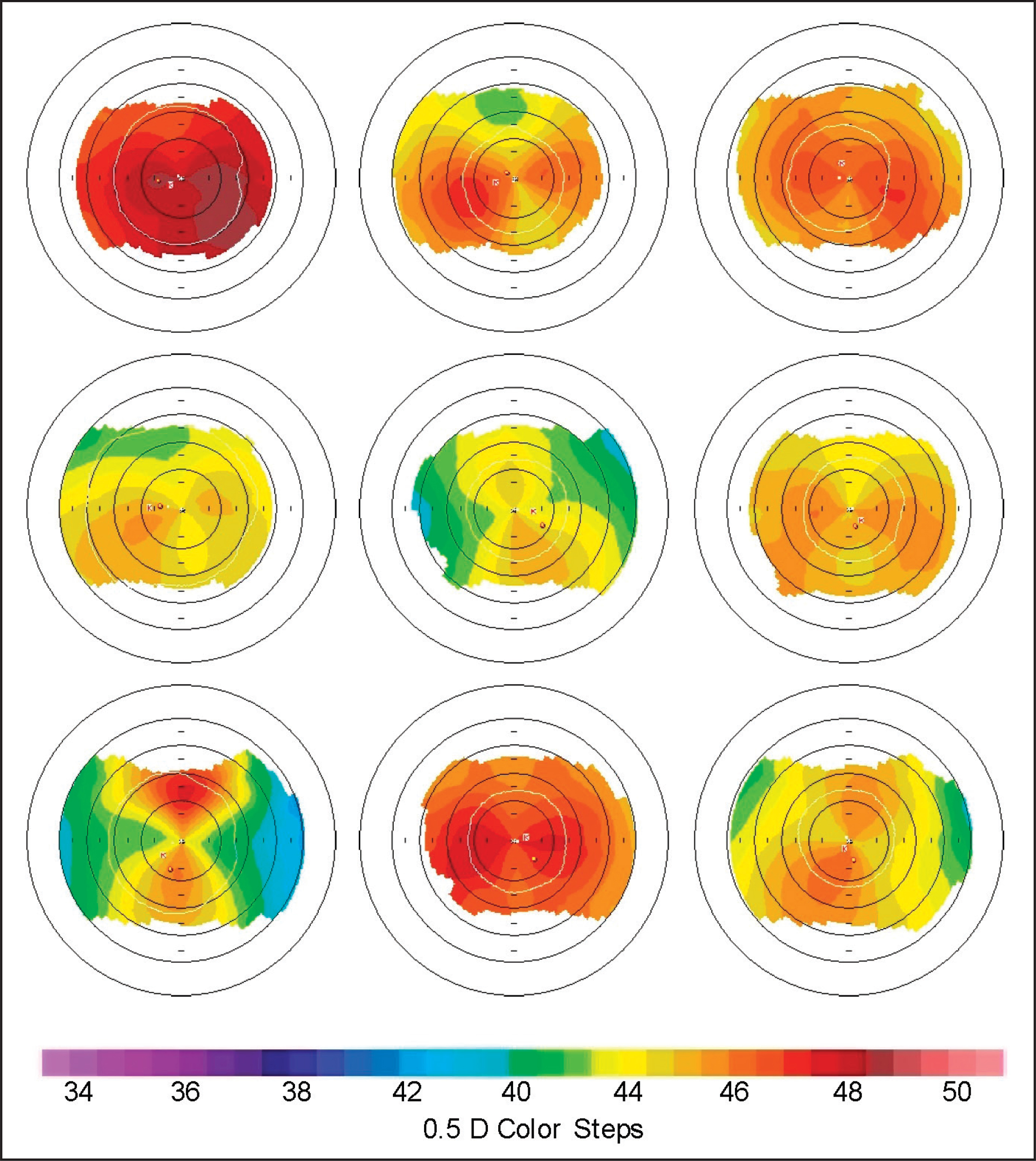 Keratometric maps showing a sampling of eyes with skewed radial axes, non-orthogonal cylinder, and inferior/superior steepening, representing naturally occurring irregular astigmatism.