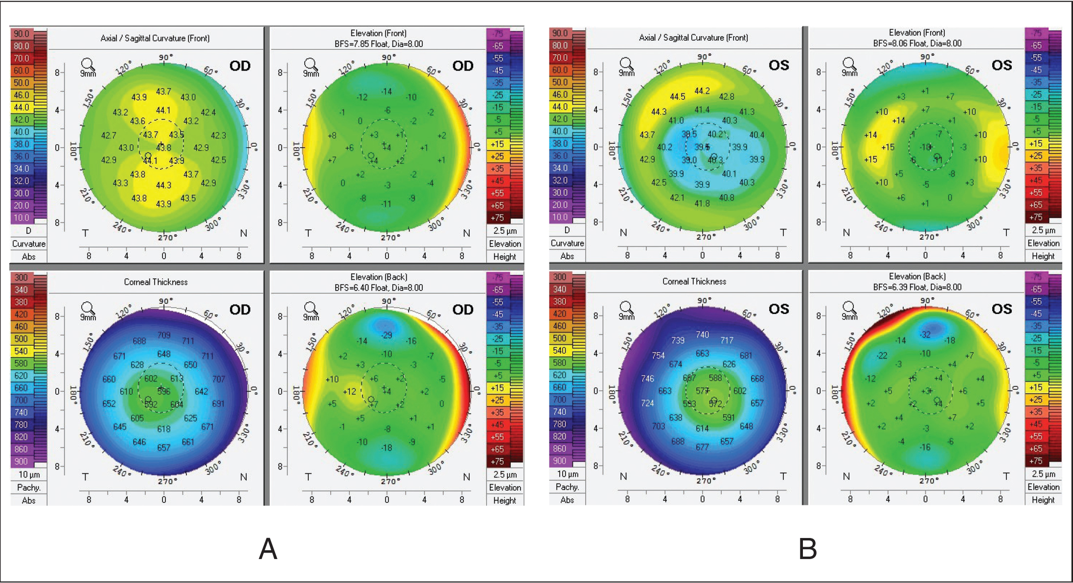 Pentacam (Oculus Optikgeräte, Wetzlar, Germany) results for case 2 at 16-year follow-up. There is slight temporal decentration of the ablation bed, symmetric between the left and right eye, and no evidence of ectasia.