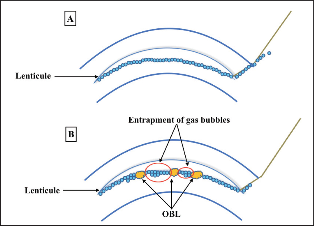 Diagrammatic representation of the (A) gas bubble escape and (B) no gas bubble escape groups. OBL = opaque bubble layer