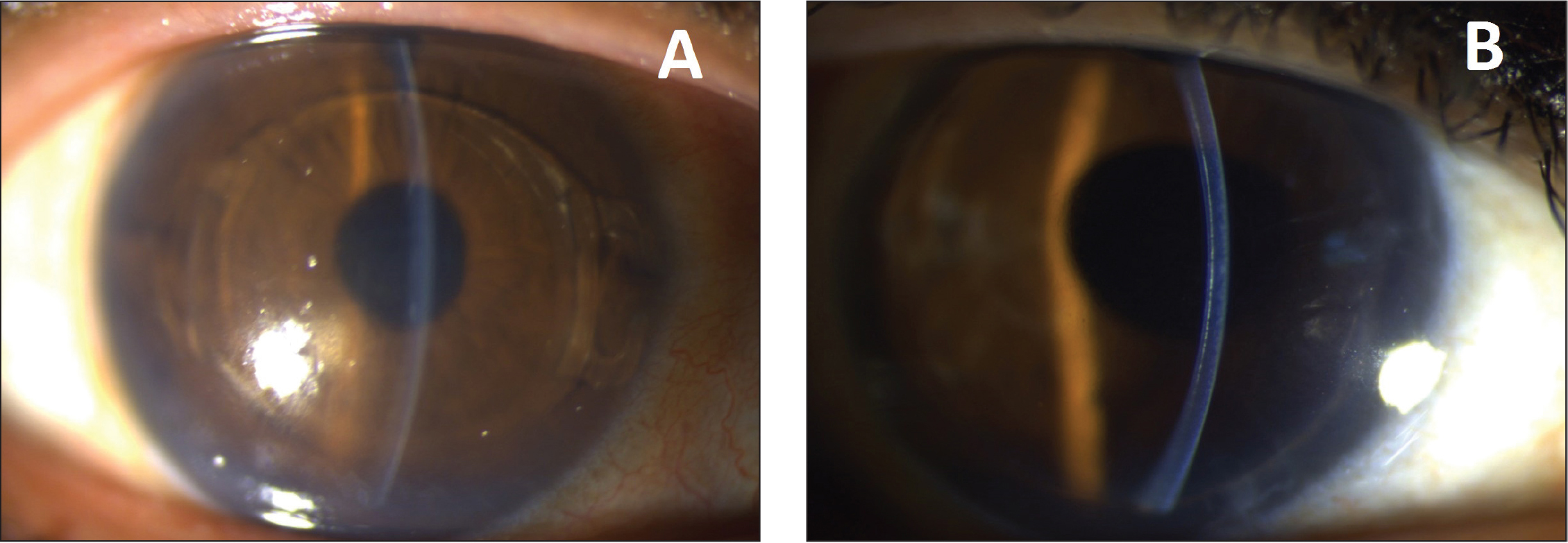 (A) Right eye of a 52-year-old patient with Artiflex (OPHTEC BV, Groningen, The Netherlands) implantation who was lost to follow-up and presented 12 years after surgery with gradually decreased vision (UDVA: 20/100). Preoperative data (before phakic intraocular lens [pIOL] implantation): UDVA: counting fingers; manifest refraction: − 6.25 −0.25 × 10; CDVA: 20/20; ACD: 3.20 mm; AQD: 2.60 mm; ECD: 2,686 cells/mm2. Post pIOL implantation data: UDVA: 20/22; manifest refraction: 0.00 −0.50 × 055; CDVA: 20/20. (B) Same eye, 5 months after Artiflex removal combined with phacoemulsification, posterior chamber IOL implantation, and Descemet stripping automated endothelial keratoplasty (DSAEK). UDVA: 20/100; manifest refraction: −1.50 −1.00 × 45; CDVA: 20/25; ECD: 1,952 cells/mm2. UDVA = uncorrected distance visual acuity; CDVA = corrected distance visual acuity; ACD = anterior chamber depth; ECD = endothelial cell density; AQD = aqueous depth