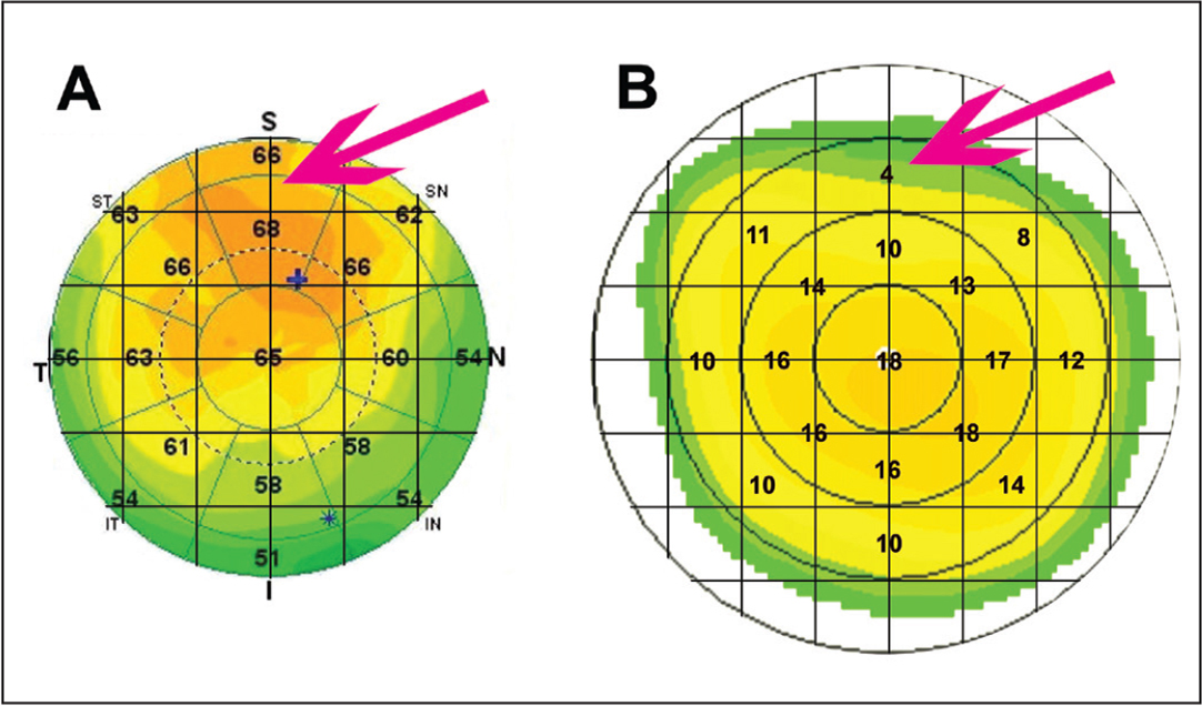 Ablation programming example in a case after laser in situ keratomileusis with subjective refraction of −0.75 −0.50 × 155. (A) Significant epithelial thickening in the central and superior paracentral cornea. (B) Topography-guided ablation simulation with sphero-cylindrical correction according to subjective refraction. The average simulated ablation depth of the superior sector from a 2- to 3-mm radius was 4 µm, whereas the epithelial thickness in the corresponding area was 66 to 68 µm (shown with arrows). A 64-µm lamellar ablation depth was programmed to ensure that the ablation would reach the stroma even under the thickest epithelium.