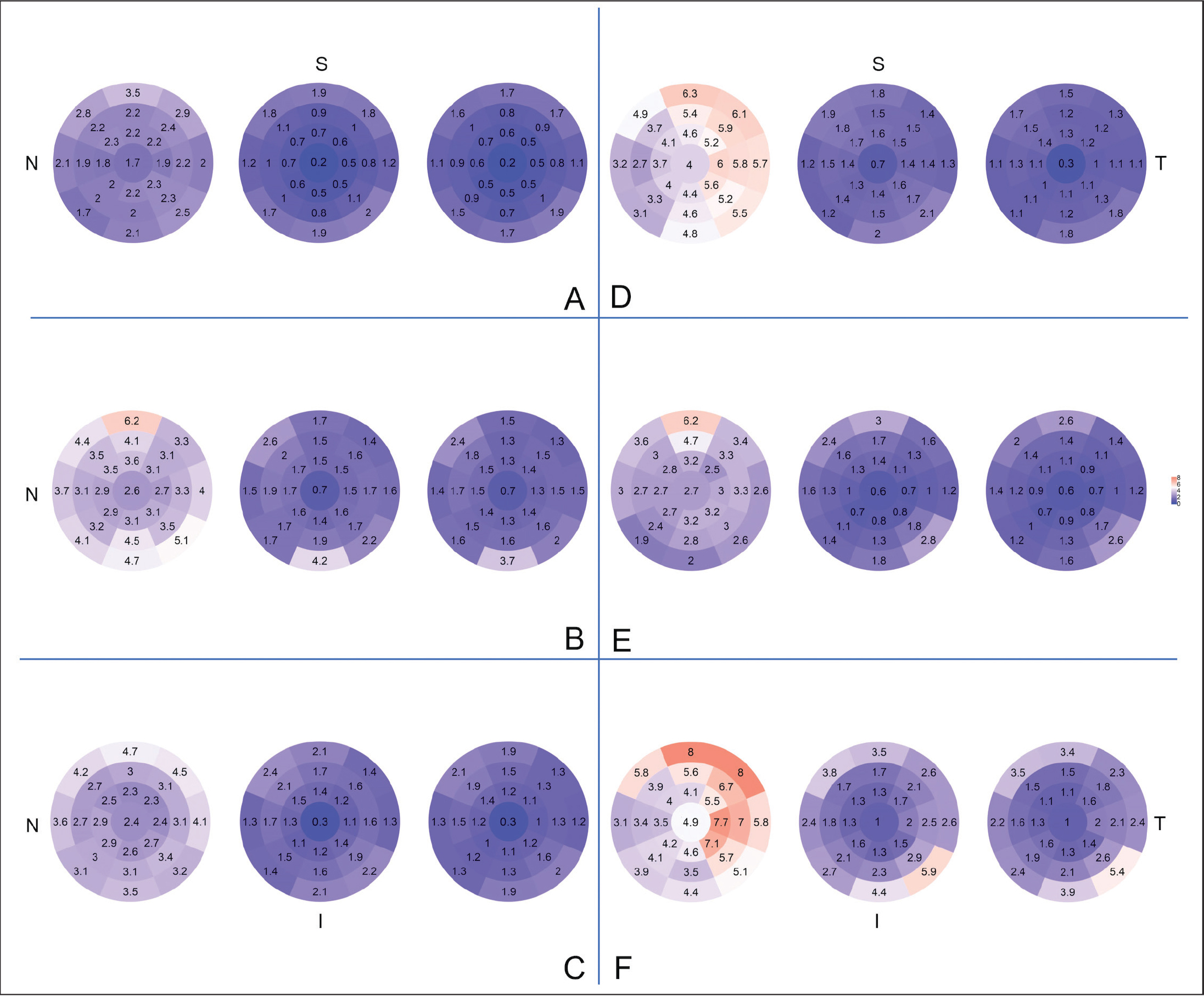 Coefficient of variation for repeatability of epithelial thickness (left), stromal thickness (middle). and total corneal thickness (right) measurement in (A) myopic eyes, (B) corneas after transepithelial photorefractive keratectomy, (C) corneas after small incision lenticule extraction, (D) corneas after femtosecond laser–assisted in situ keratomileusis, (E) eyes with mild keratoconus, and (F) eyes with advanced keratoconus. Temporal, superior, nasal, and inferior locations are marked as 'T', 'S', 'N', and 'I', respectively.