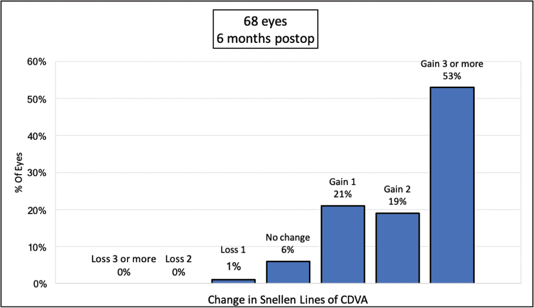 Change in corrected distance visual acuity (CDVA) relative to preoperative CDVA.