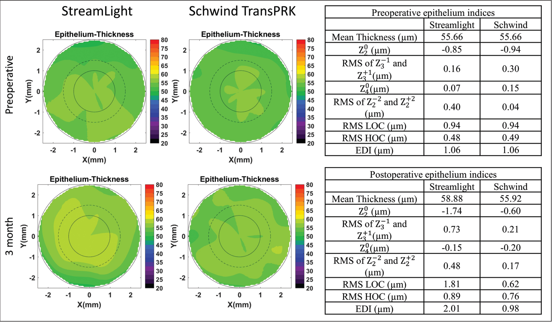 A comparison of epithelium thickness remodeling between two eyes of a patient (before and after surgery). A summary of the epithelium Zernike indices is listed in the table next to the contour plots. Streamlight is manufactured by Alcon Laboratories, Inc. RMS = root mean square; LOC = lower order coefficients; HOC = higher order coefficients; EDI = Epithelium Distortion Index; TransPRK = transepithelial photorefractive keratectomy